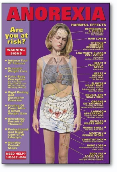 bridget-anorexia-signs